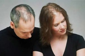 Hair implants for men and women