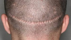 FUE vs strip method for hair transplant