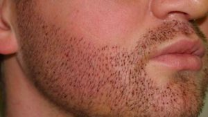 How much does beard hair transplant cost?