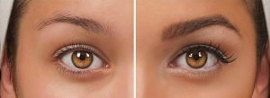 How long do eyebrow transplants last?